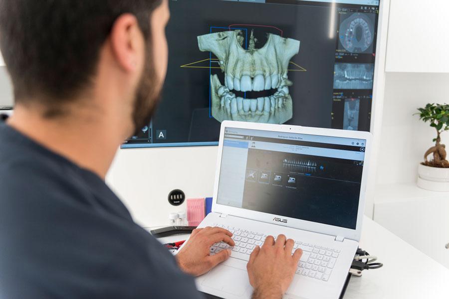 Imagen 3D de dentadura